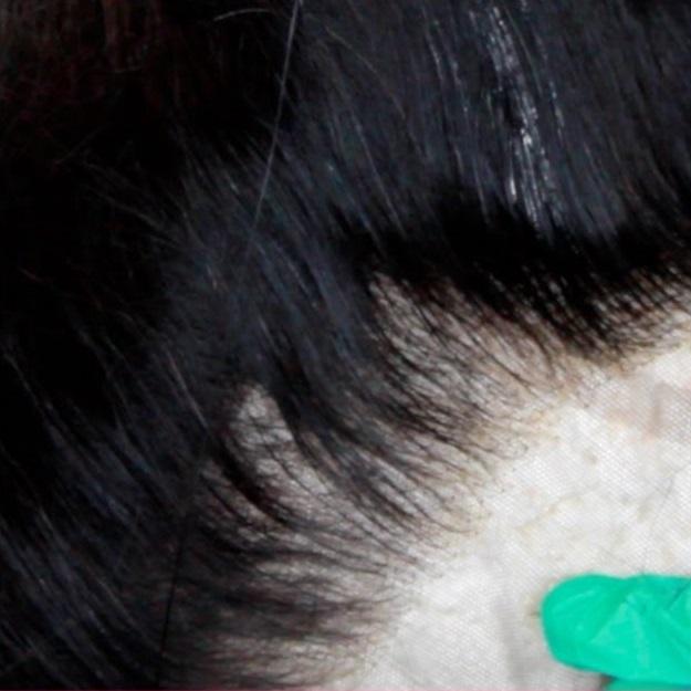 kaliteli ve ucuz protez saç farkı , kaliteli protez saç fiyatları