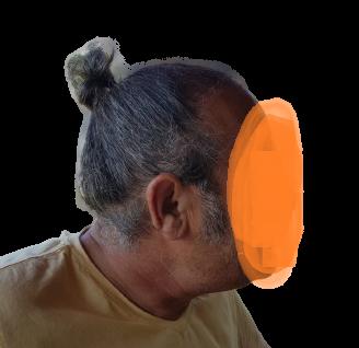 protez saç ve saç ekimi