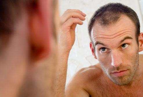 saç dökülmesi , aşırı saç dökülmesi