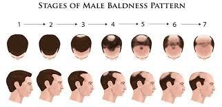 erkek tipi saç dökülmesi nasıl önlenir , saç dökülmesine çözüm nedir